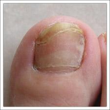 Che guarire un fungo tra le dita che stanno rapidamente ed efficacemente
